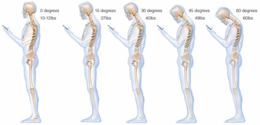 Texting A Real Pain In The Neck